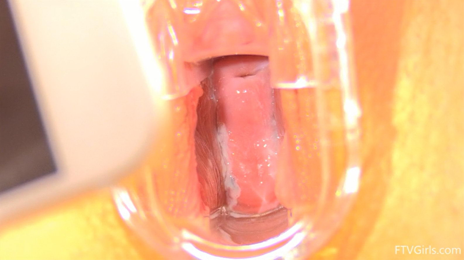 Speculum in Pussy of 18 yo Girl